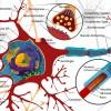 線維筋痛症の症状について!原因や治療法、発症しやすい人とは?
