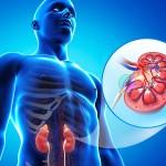 腎臓の石灰化とは?治療法や症状、原因を知って予防しよう!
