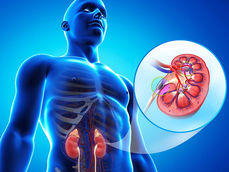 腎臓 石灰化