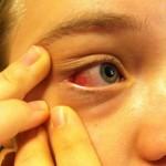 目尻が痛いのは病気?原因や治療方法を知って対処しよう!
