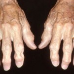 へバーデン結節とは?原因・症状、治療法、リウマチとの違いを紹介!