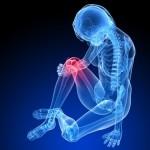 骨肉腫の初期症状とは?治療方法も合わせて紹介!