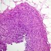 滑膜肉腫ってなに?原因や症状、治療方法は?予後や進行状況も知ろう!