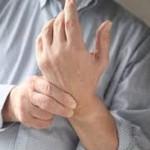 TFCC損傷を詳しく知ろう!治療のための手術や原因、症状を細かく紹介!