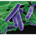 ボツリヌス菌に注意!感染して起きる症状や特徴を紹介!食中毒が起きる原因は?