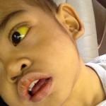 胆道閉鎖症の症状を知ろう!便の色や黄疸に注意!生存率や病気の予後は?