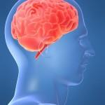 脳溢血とは?前兆や症状、原因を知ろう!検査方法や治療方法、後遺症は?