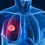 肺腫瘍の良性、悪性の違いを知ろう!症状や原因、治療するための手術方法などを紹介!
