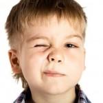 トゥレット症候群の症状とは?原因や合併症についても紹介!治療法や予後は?