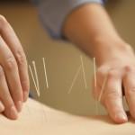 鍼灸の効果はある?その仕組みや概念を知ろう!それぞれの違いはなに?