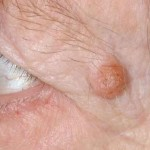 乳頭腫ってどんな病気?種類・症状・原因・治療法を紹介!喉や鼻にもできる?