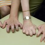 シャルコー・マリー・トゥース病(CMT)とは?症状・原因・種類・検査方法・治療法を紹介!