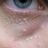稗粒腫は自分で治療できる?治し方を知ろう!症状や原因、予防法は?
