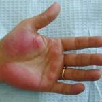 手掌紅斑の原因とは?症状や発生の仕組みを知ろう!かゆみが判断基準になる?治療方法も紹介!