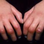 強皮症について!症状や原因、診断基準を知ろう!治療法や日常での注意点を紹介!