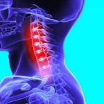 ストレートネックに注意!症状や原因、治療法は?悪化すると引き起こす病気を知ろう!
