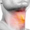 声帯ポリープは手術じゃなくても治る?投薬治療での副作用を知ろう!症状や原因は?