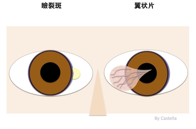 瞼裂斑と翼状片