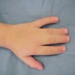 合指症の原因とは?妊婦の喫煙が原因?症状や分類、診断方法を知ろう!手術で治療が可能?
