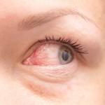 ぶどう膜炎は完治する?症状や原因、治療法を紹介!再発を防ぐにはどうすればいい?