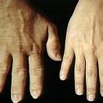 先端巨大症はどんな病気?症状や原因、治療法について!合併症のリスクも知っておこう!