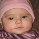 よだれかぶれの赤ちゃんに注意!原因や症状、治療法を知ろう!赤ちゃんの肌の手入れ方法は?