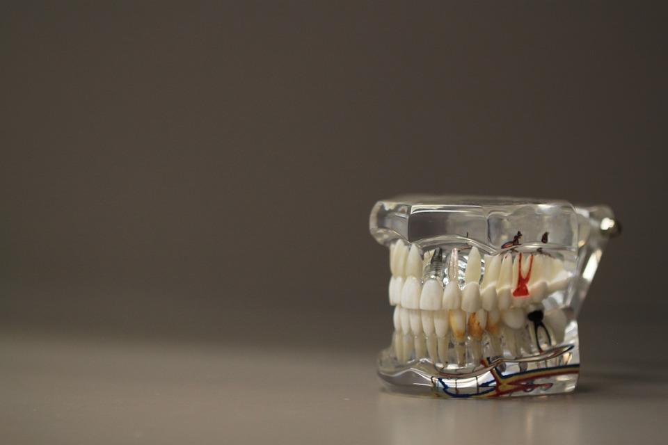 dentistry-668191_960_720
