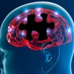 多系統萎縮症の余命はどのくらい?症状や原因、予後について知っておこう!対症療法についても紹介!