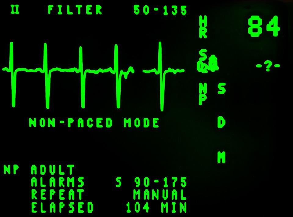 electrocardiogram-16948_960_720