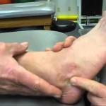 踵骨骨折の治療には手術が必要?予後、後遺症について!原因や症状、検査方法も紹介!