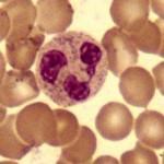 無顆粒球症の症状・原因・治療法を紹介!早期発見のポイントや注意する薬を知ろう!