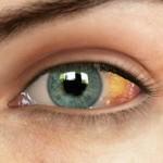 瞼裂斑は治療する必要がある?症状や原因、予防方法も紹介!鼻側に多い理由は?