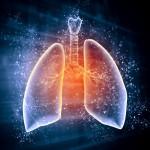 肺胞出血の原因とは?その症状やメカニズムを知ろう!早期発見に必要なポイントは?