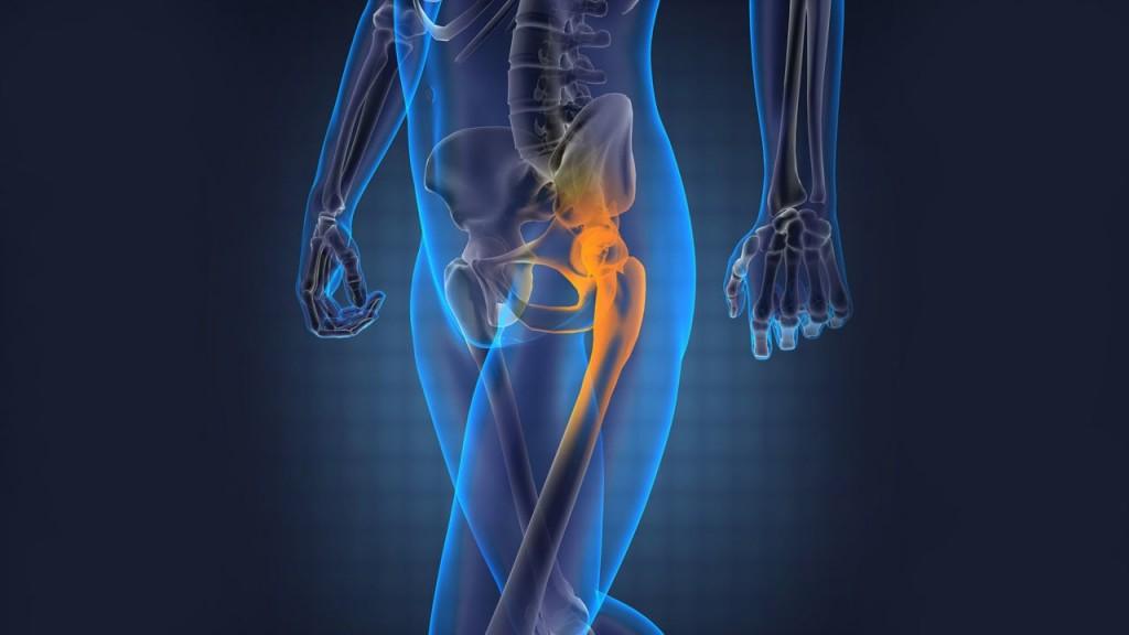 股関節 痛み