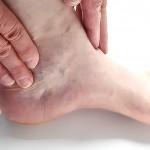 足根管症候群の治療には手術が必要?原因で変わることも?痺れや痛みの症状に注意!