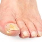 足の爪が白い原因はなに?病気の可能性も?色の変わり方をチェックしよう!