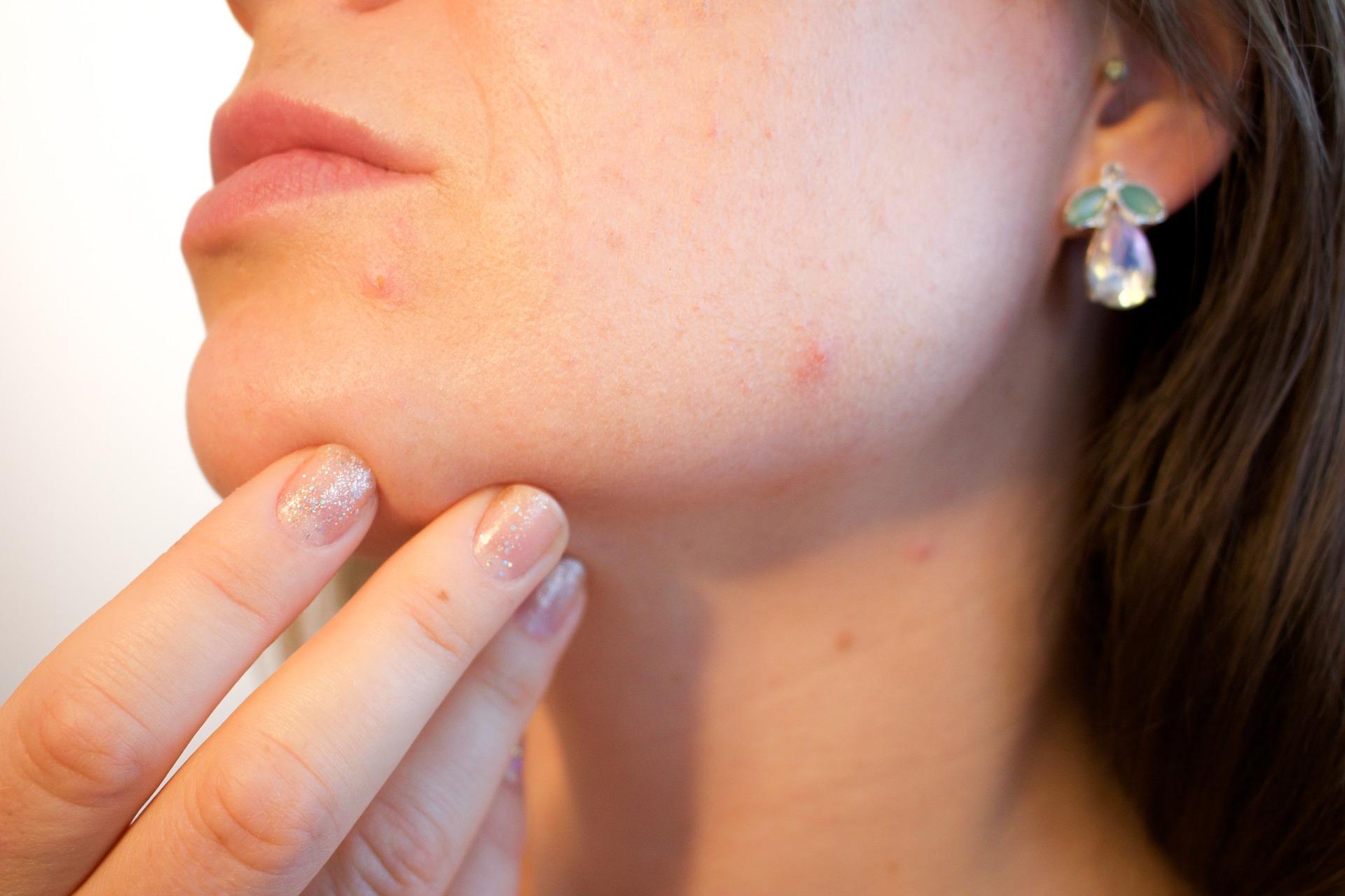 皮膚の病気である乾癬に関節炎を伴った場合を乾癬性関節炎(Psoriatic  ArthritisPsA)といいます。皮膚の細胞が垢になって剥がれ落ちるまでの角化(かくか)という症状