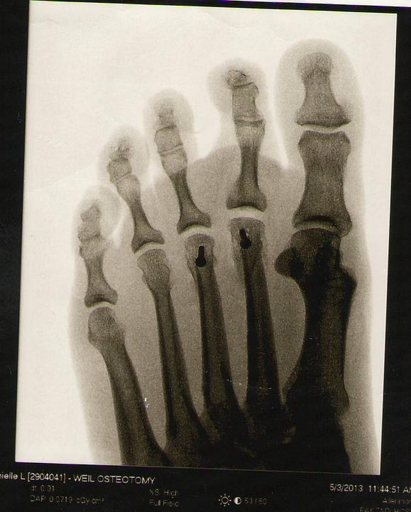 foot-1767724_960_720