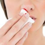 オスラー病とは?症状・原因・治療法を紹介!鼻血が頻繁に出る人は要注意!