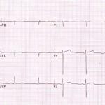 右軸偏位とは?原因として考えられる病気と心電図の見方を紹介!