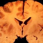 出血性梗塞について!症状・原因・治療法は?診断方法や脳浮腫のリスクを知ろう!
