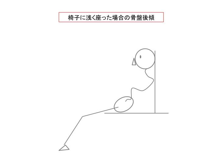 不適切な姿勢による骨盤後傾