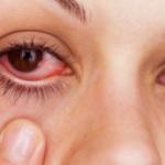 涙袋が腫れる原因って?病気の可能性と美容整形によるものの可能性を紹介!
