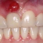 歯茎にできものが出来る原因とは?病気の可能性や口内炎について紹介!