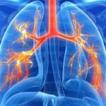気管支拡張症とは?症状・原因・治療法を知ろう!予防する方法は?