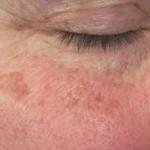 老人性色素斑を治療するにはレーザーが必要?症状や原因、治療方法を知ろう!