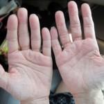 指が腫れるのは病気?考えられる原因や治療法を知ろう!爪や腎臓に問題がある場合も?