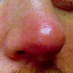 鼻が腫れる原因はなに?可能性のある病気や出来物などを紹介!