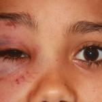 眼窩底骨折とは?症状や原因、治療法を知ろう!診断方法や合併症も紹介!