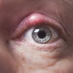 眼瞼炎とは?症状や原因、治療法を知ろう!目を擦るの行為に要注意!